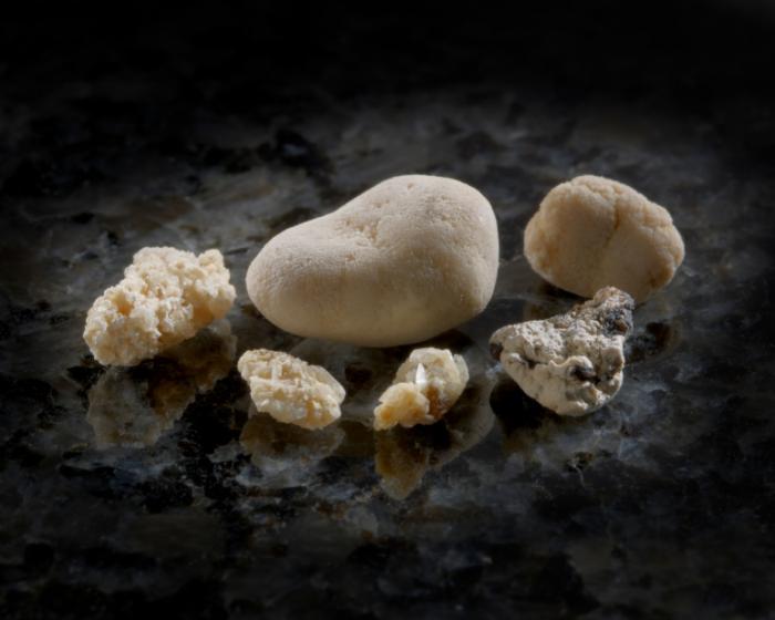 Почечные камни фото