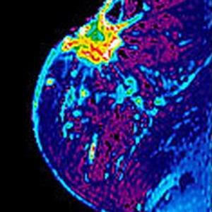 Маммография когда готовы результаты - 1b