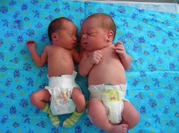 Фото детей рожденных весом 2500 57